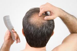 chute-de-cheveux-signe-de-faible-testosterone