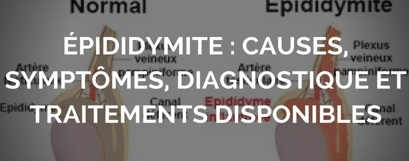 epididymite-causes-symptomes-diagnostique-et-traitements-disponibles